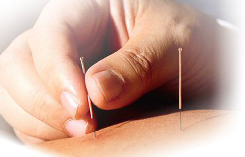 acupuncture-needles1